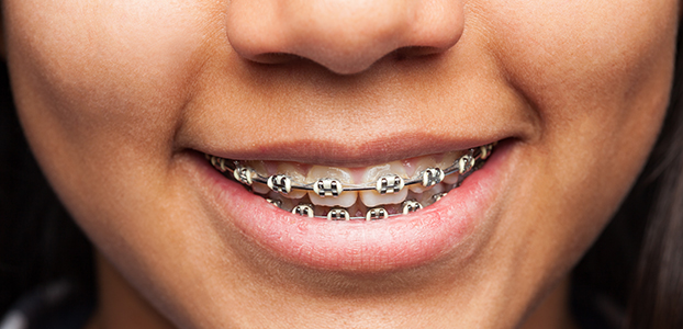 Who Is A Candidate For Orthodontic Treatment